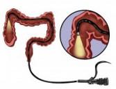 Endoscopia Digestiva Baixa